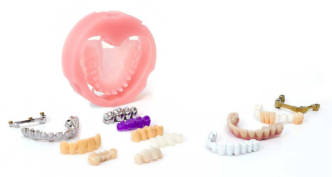Dentaduras 3d